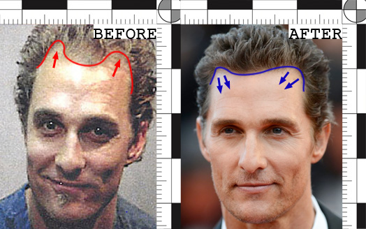matthew mconaughey hair transplant before and after