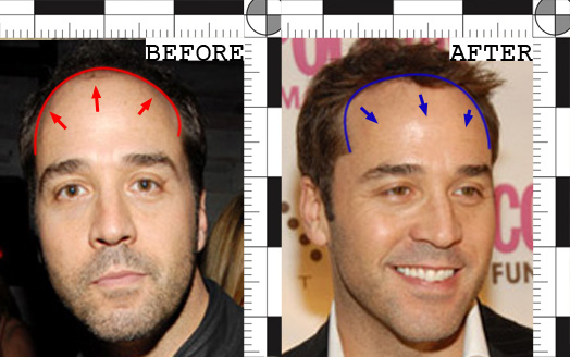 Jeremy Piven Hair Transplant Before and After