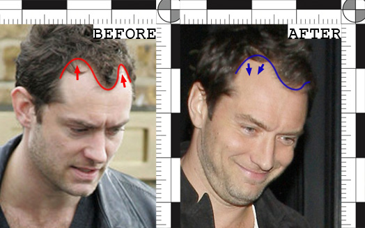 Jude Law Hair Transplant Before and After