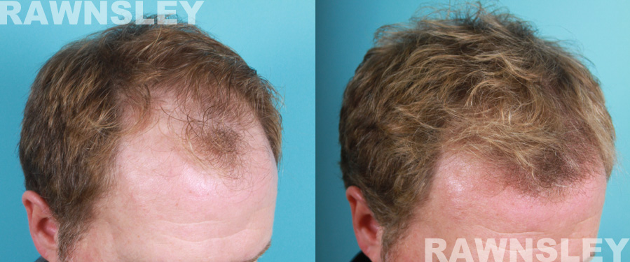 Hair Transplant Before Amp After 3 Rawnsley Hair Restoration
